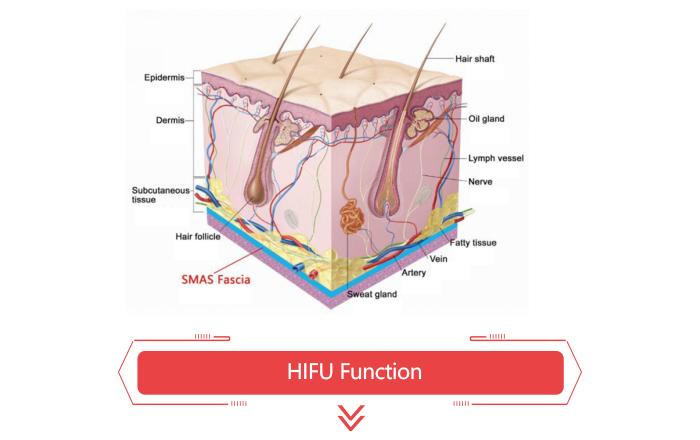 3D Ultrasound hifu.jpg