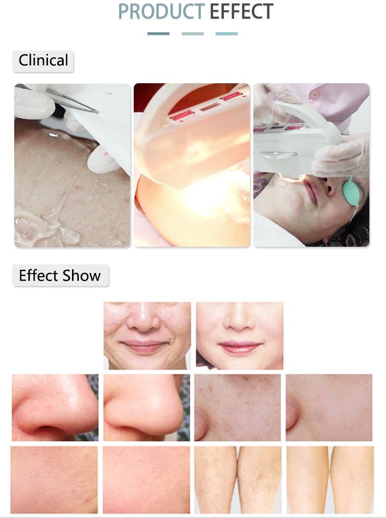 ipl laser hair removal.jpg