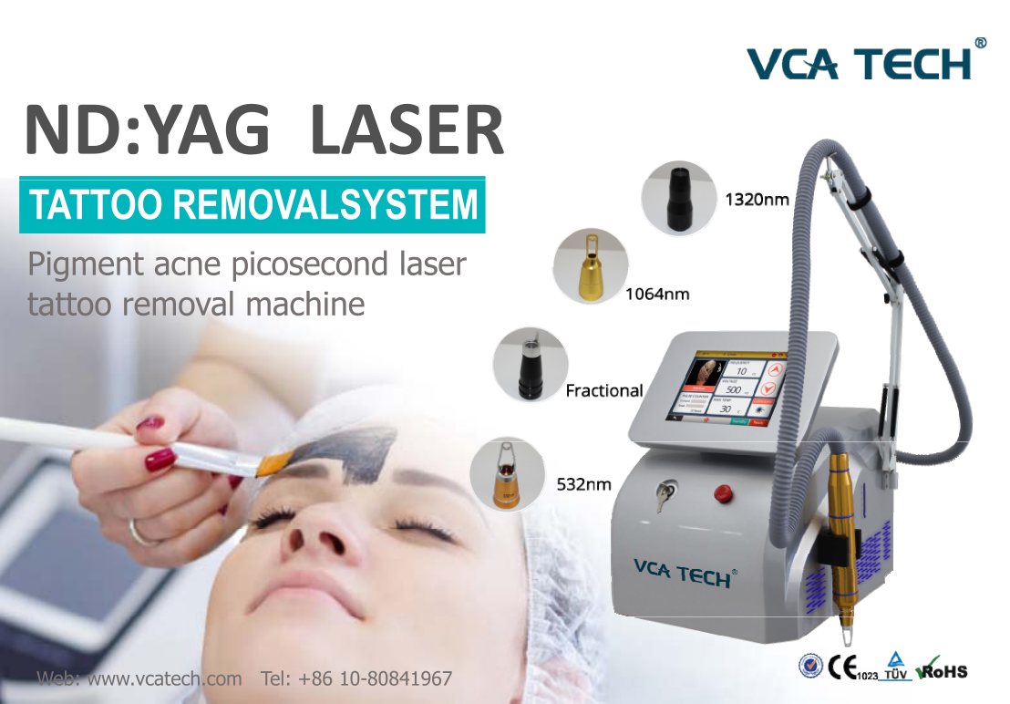 What is the Best Tattoo Removal Machine?