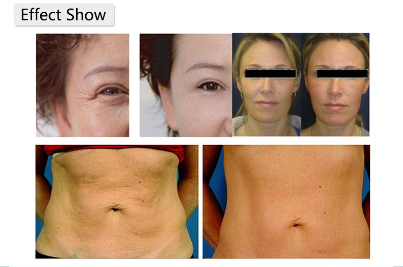 Wrinkle removal.jpg