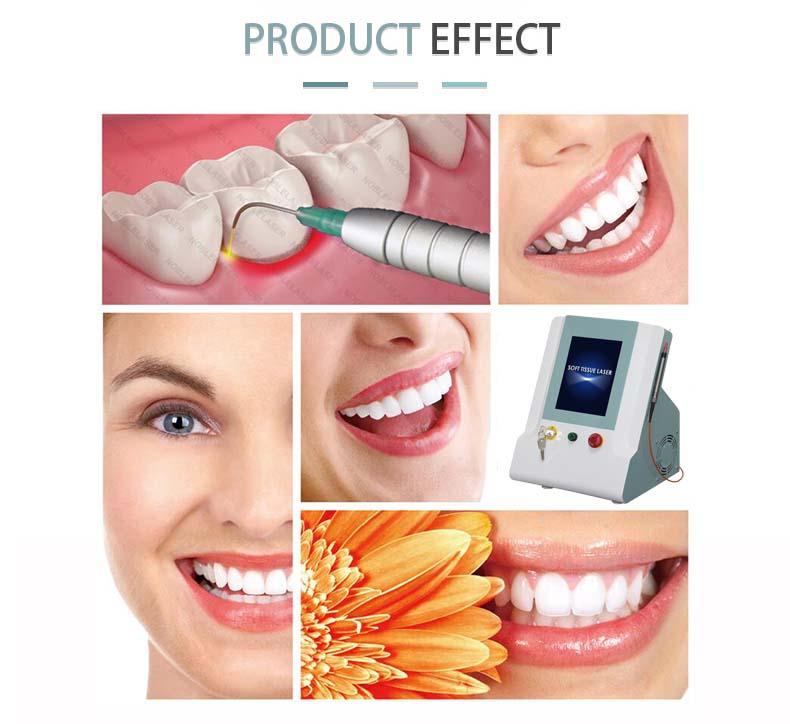 Teeth Whitening machine.jpg