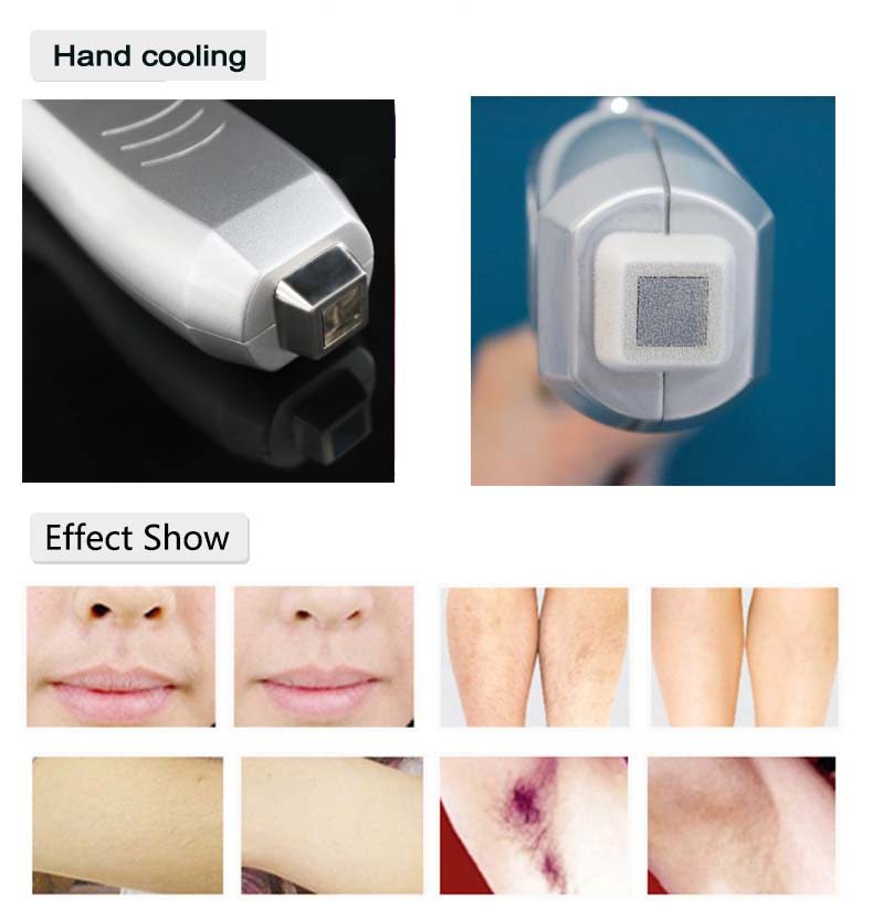 laser hair removal machine.jpg