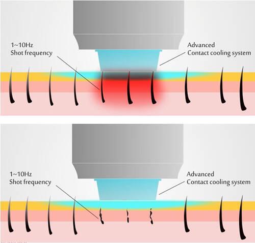 Diode laser hair removal.jpg