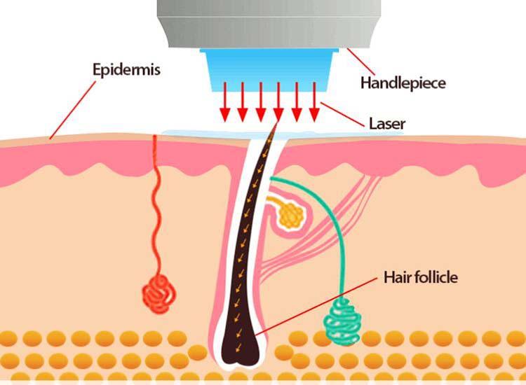 laser hair removal device.jpg
