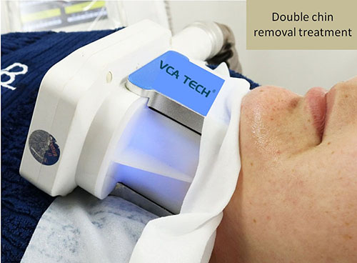 Double chin removal handle for Cryolipolysis fat freezing slimming machine