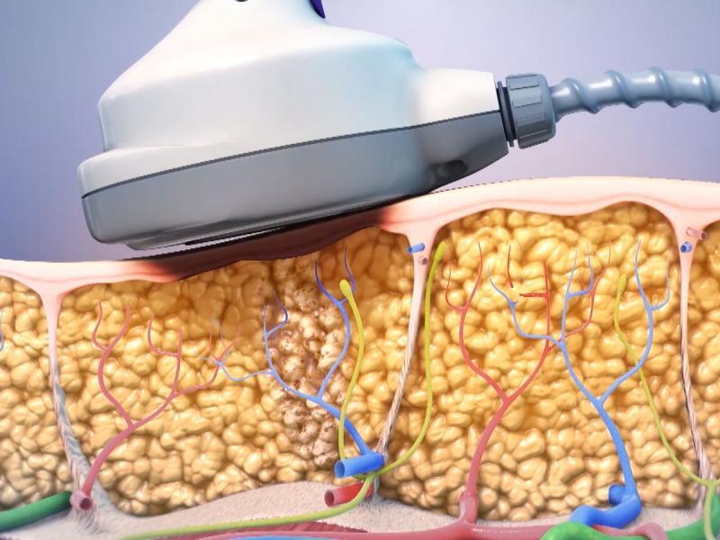 Ultrashape VCA laser (1).jpg