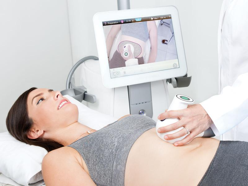 UltraShape: faster, virtually painless and with no downtime